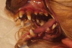 Ultrazvuk zubů
