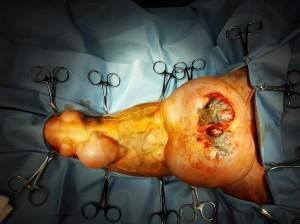 4 - Madlenka na sále po nachystání na vlastní operaci